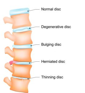 american-chiropractic-disk-degeneration-therapy