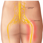 lower back sciatica nerve pain