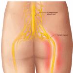 lower back sciatica nerve pain